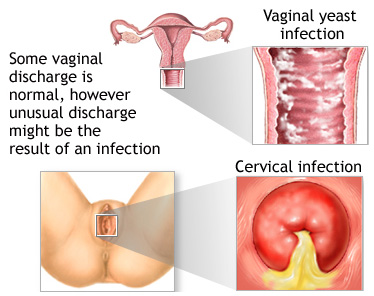 Vaginal pain lower back bleeding and